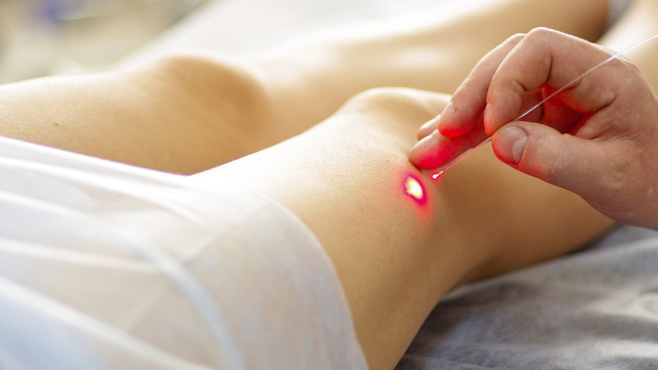 Quale spazio per la terapia chirurgica delle varici?  Ablazione laser della vsi o scleromousse: il trattamento combinato.